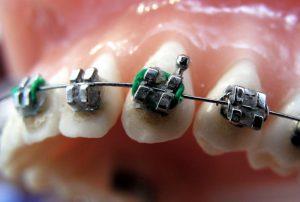 Bagues dentaires pour adultes