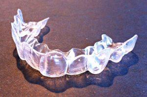 Gouttières dentaires invisibles pour redresser les dents
